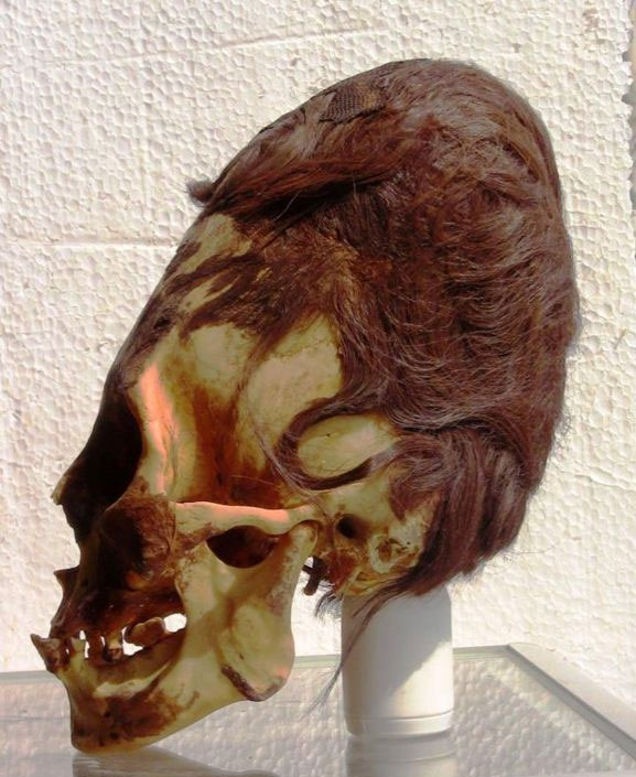 Healing with Sound, Serpent Priests of Malta - Peru Elongated skull